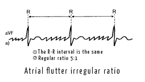 File:Atrial flutter jpg - CardioWiki